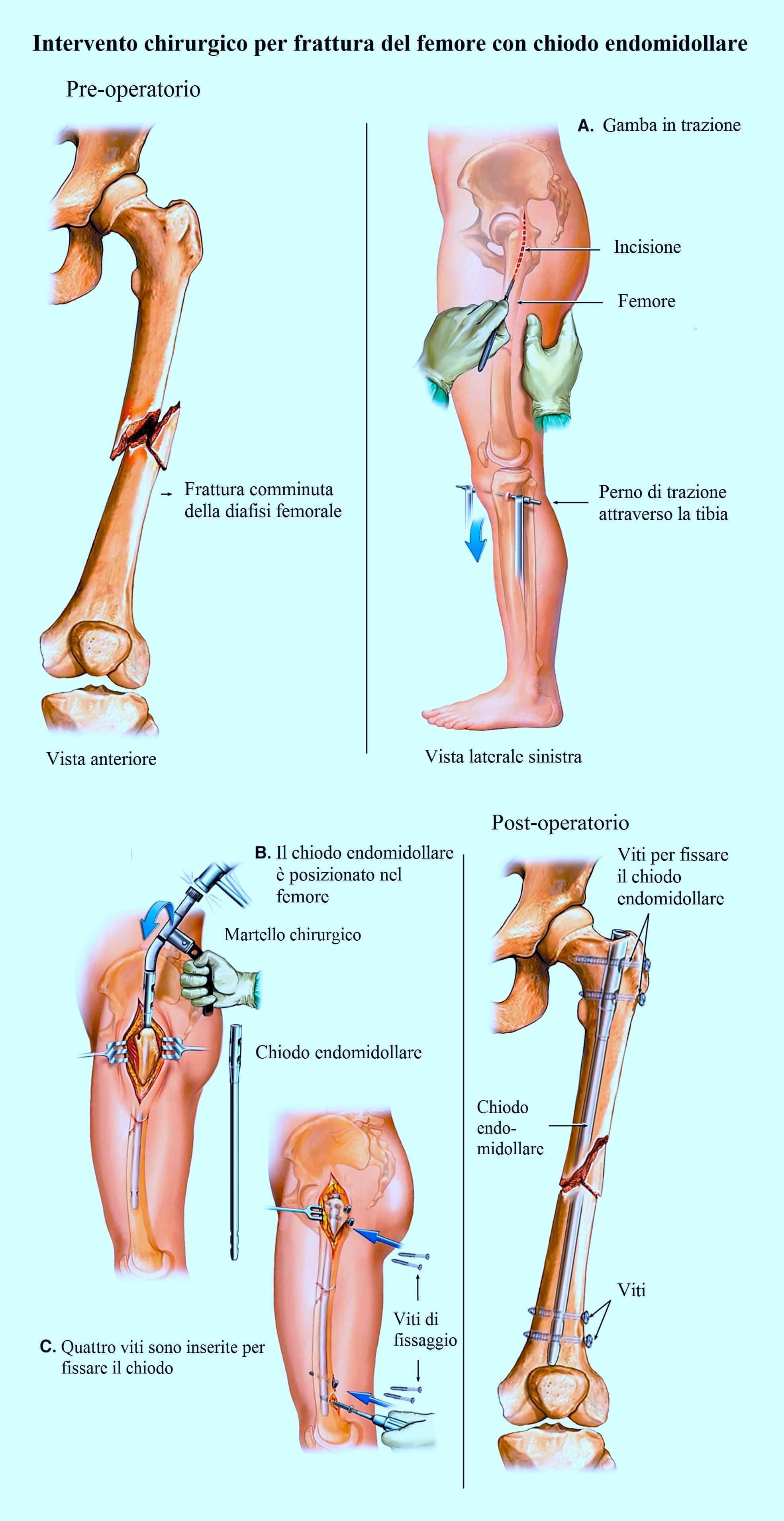 Operazione chirurgica,frattura del femore,diafisi