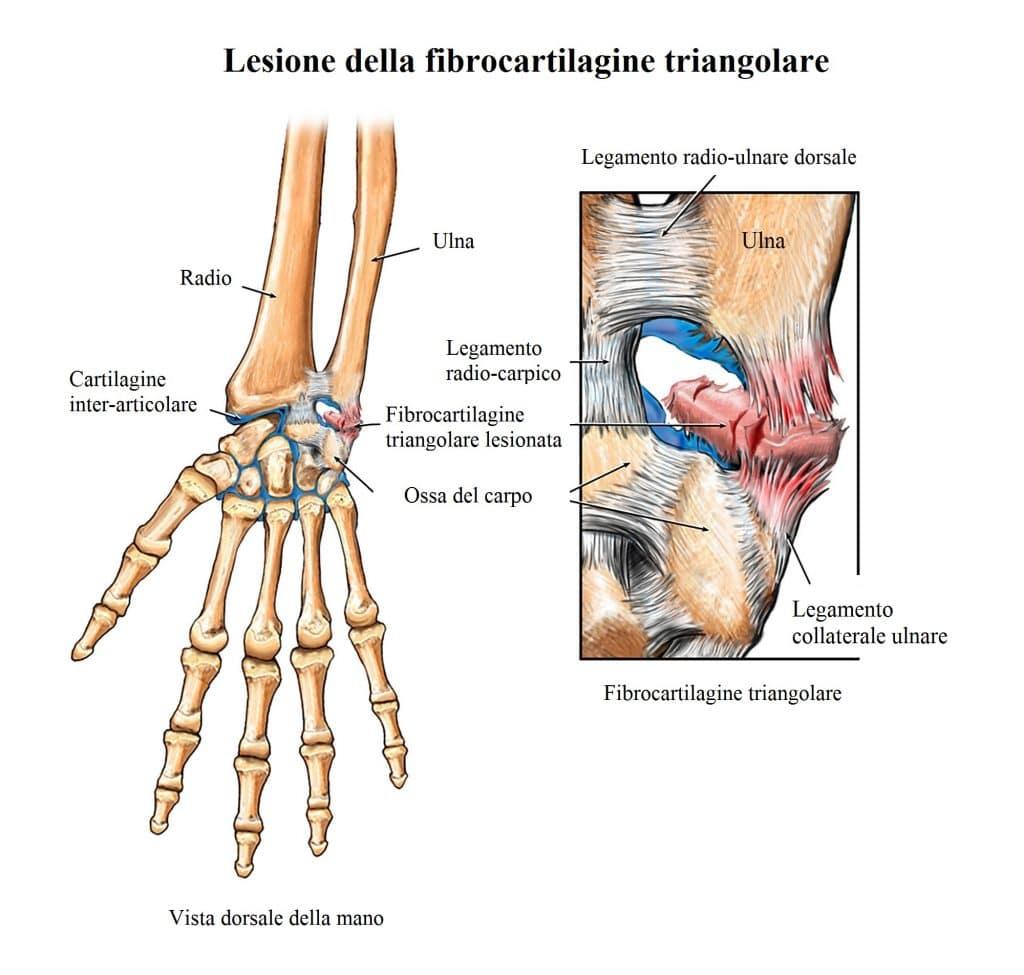 Fibrocartilagine triangolare,legamento collaterale ulnare,lesione,rottura