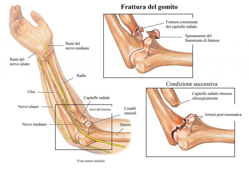 nervo ulnare,mediano,frattura del gomito