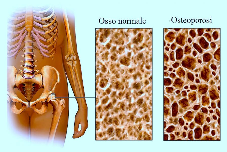 Osteoporosi,anca,femore,osso