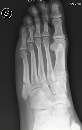 Frattura del quinto metatarso del piede riabilitazione e for Cuarto y quinto metatarsiano