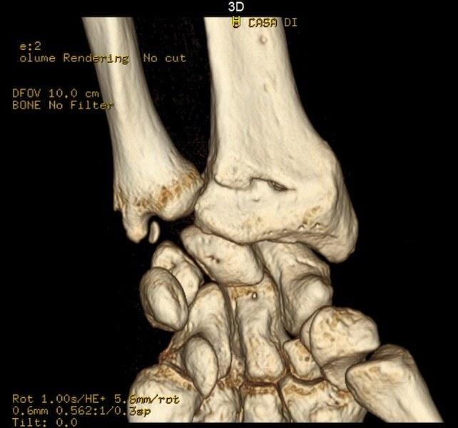 tac,polso,frattura,lesione,colles,caduta,mano,avanti,estensione