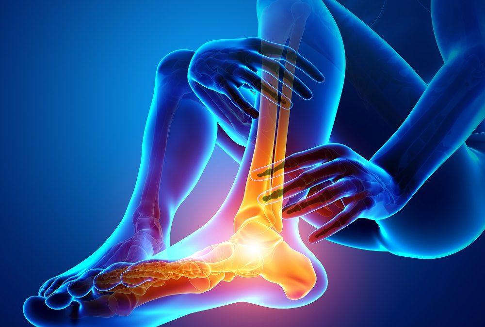 4 cause di dolore sotto al piede (o alla pianta)