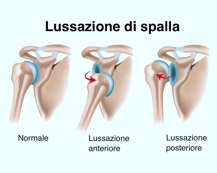 lussazione,spalla,instabilità,dolore,infiammazione