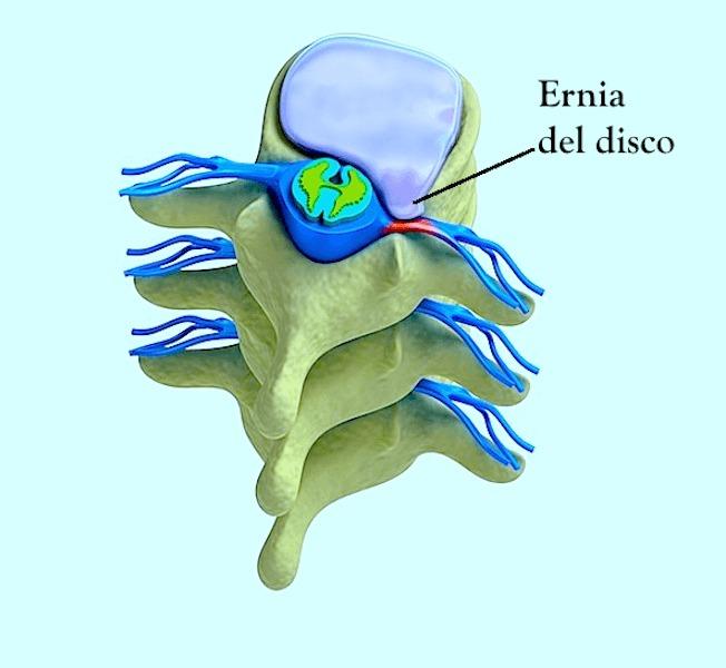 ernia,disco,vertebrale,protrusione,bulging,dolore,infiammazione,lombare,cervicale