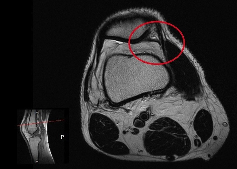 plica,sindrome,ginocchio,patellare