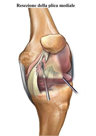 Resezione chirurgica,plica mediale,ginocchio