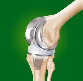 Protesi al ginocchio