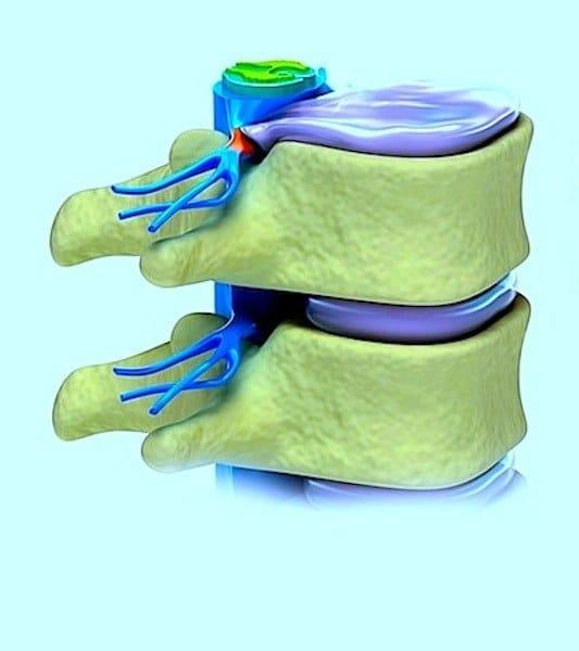 ernia,disco,compressione,nervo,lombare,dolore,formicolio,bruciore