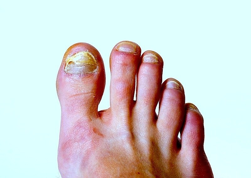 fungo,alluce,piede,infezione,dolore,dita,scarpe