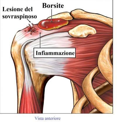 Borsite subacromiale,spalla