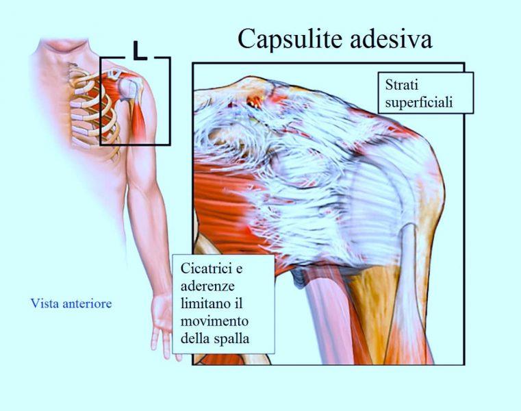 capsulite adesiva,aderenze