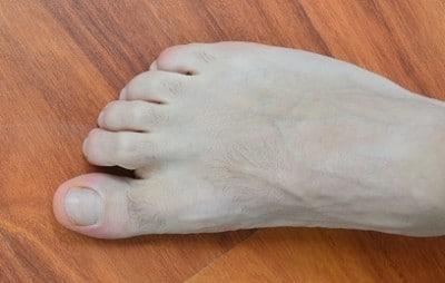 Dita ad artiglio,secondo,piede,dolore,deformazione,malformazione,deformità