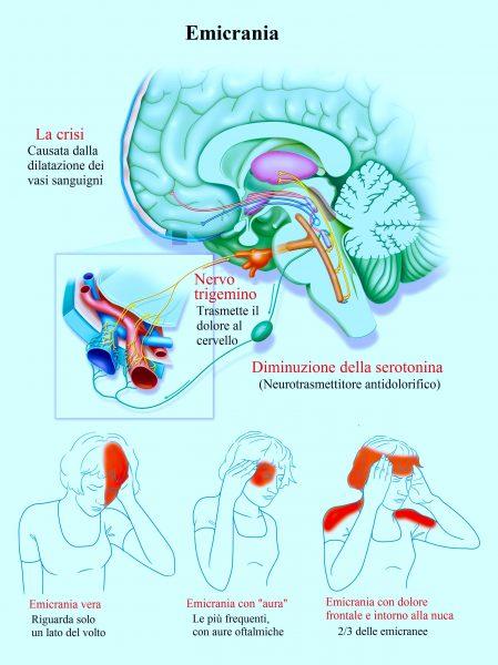 Emicrania con aura,dolore