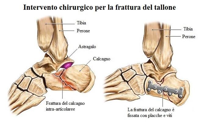 Popolare Dolore al piede, lato esterno o interno, al tallone, cause e terapia VH54