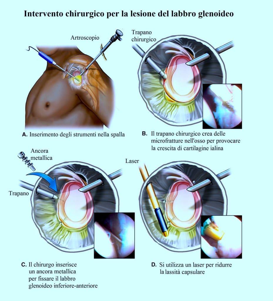 Intervento,chirurgia,rottura del labbro glenoideo