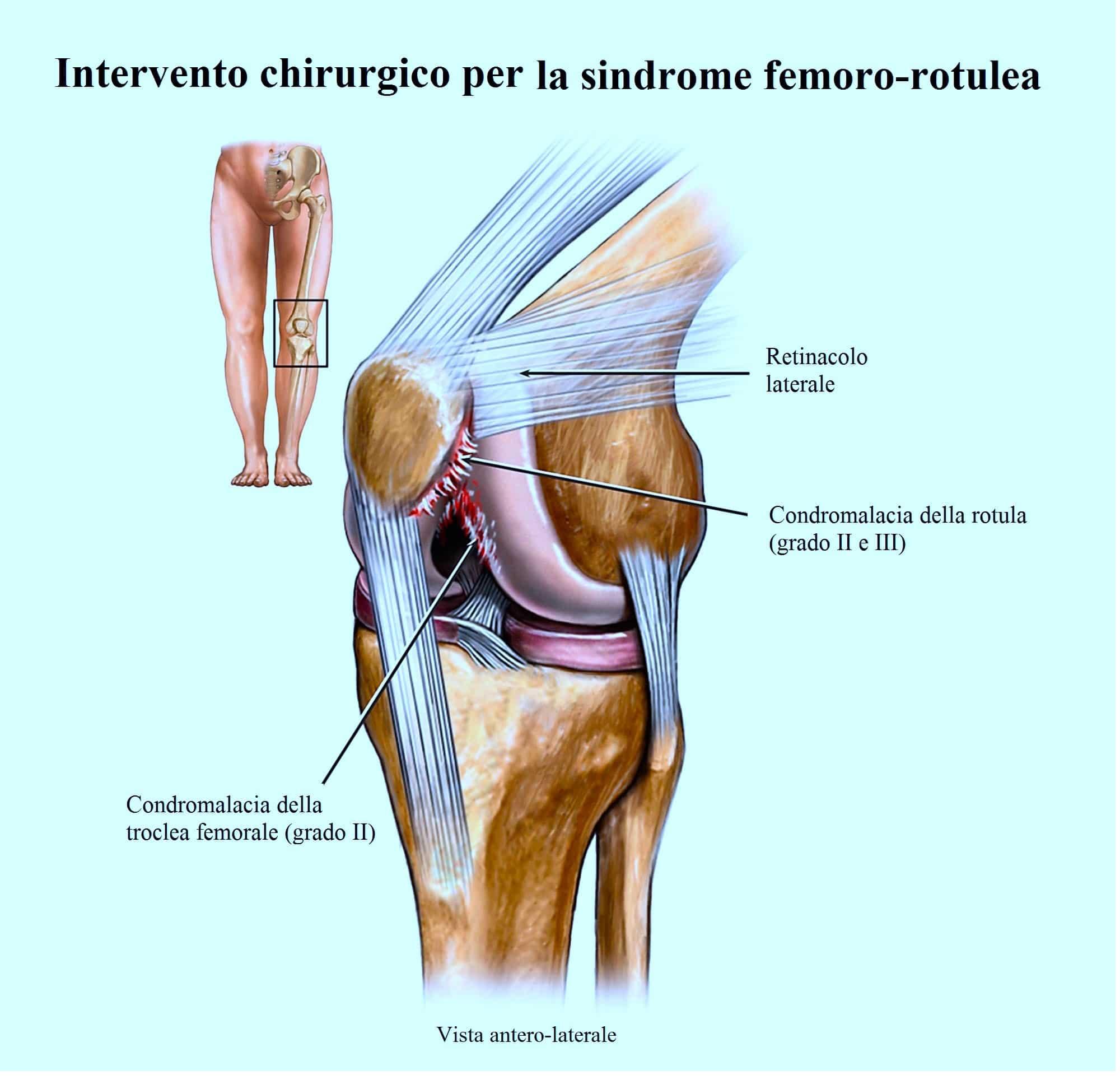 dolore al ginocchio interno esterno laterale cause