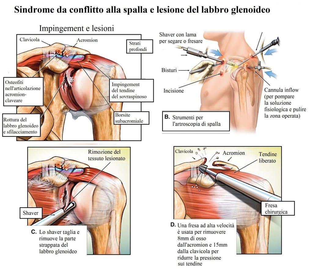 Sindrome da conflitto,intervento,spalla,acromionplastica