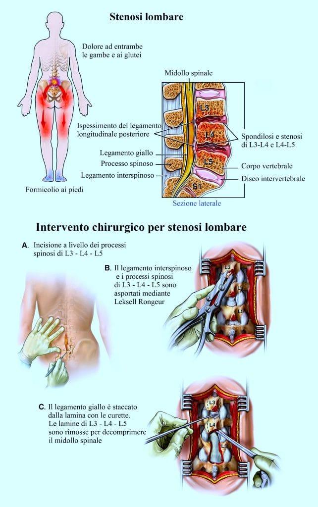 stenosi lombare, intervento chirurgico,decompressione