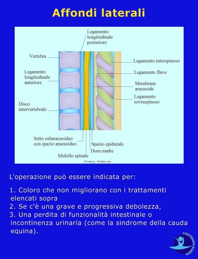 vertebre-lombari