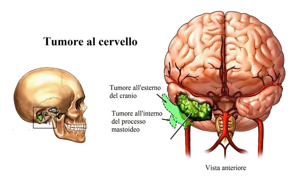 Tumore al cervello,meningite