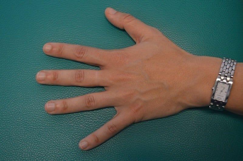 Dedo en gatillo, pulgar, índice, mediano, causas y cirugía