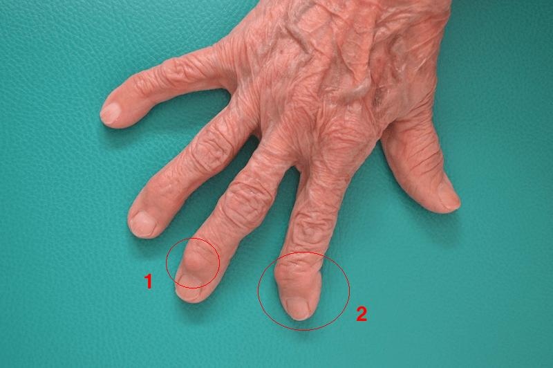 artrosi,dita,mano,nodulo,heberden,deviazione,falangetta,