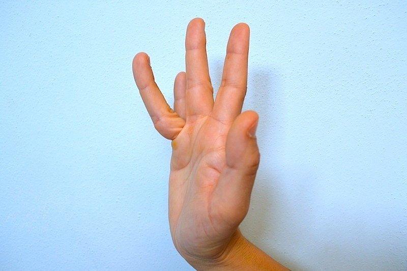 lussazione,dito,trauma,contusione,lesione,tendine,dita