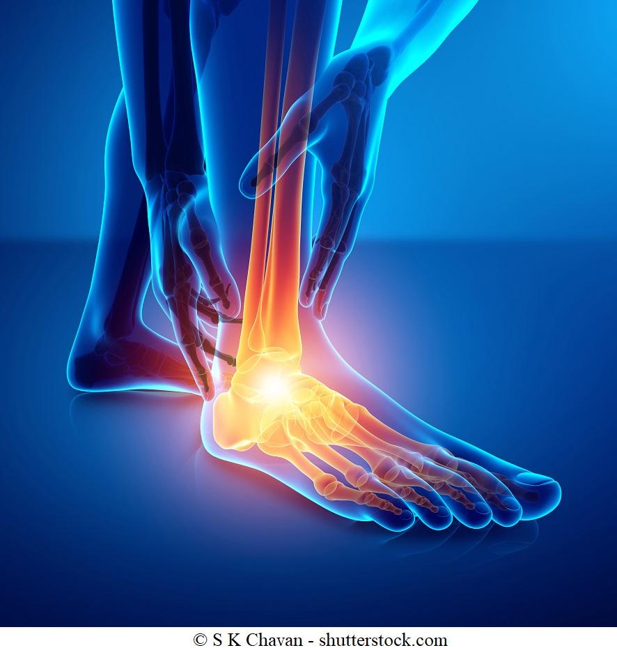 Dolore alla caviglia - terapia