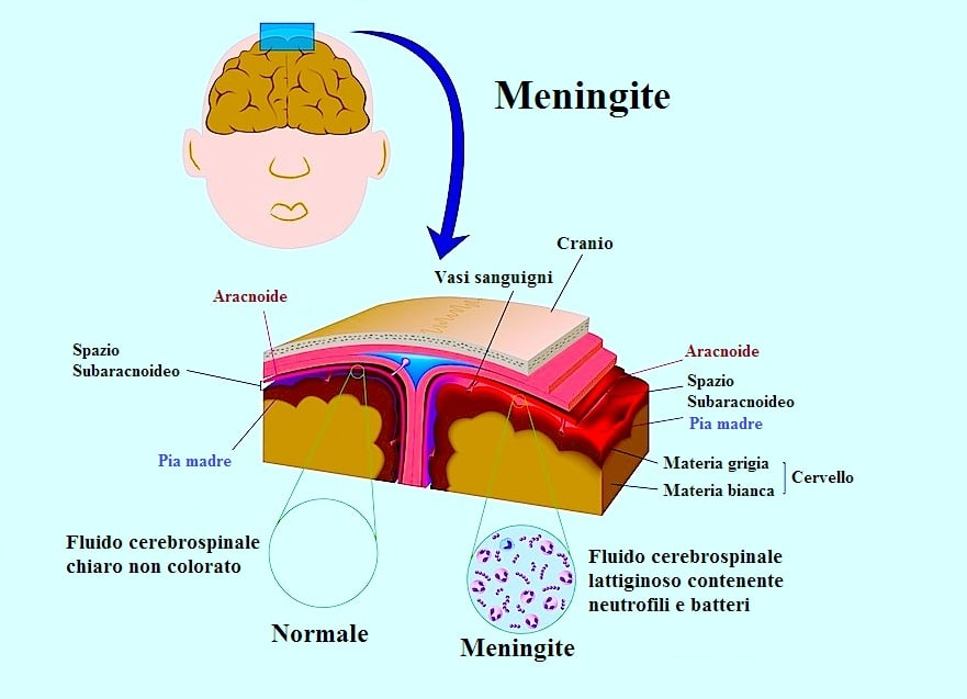 Sintomi della meningite virale e batterica