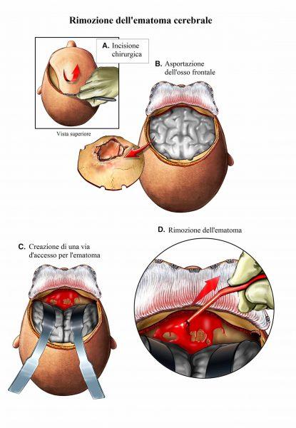 Ematoma subdurale,aspirazione,intervento chirurgico