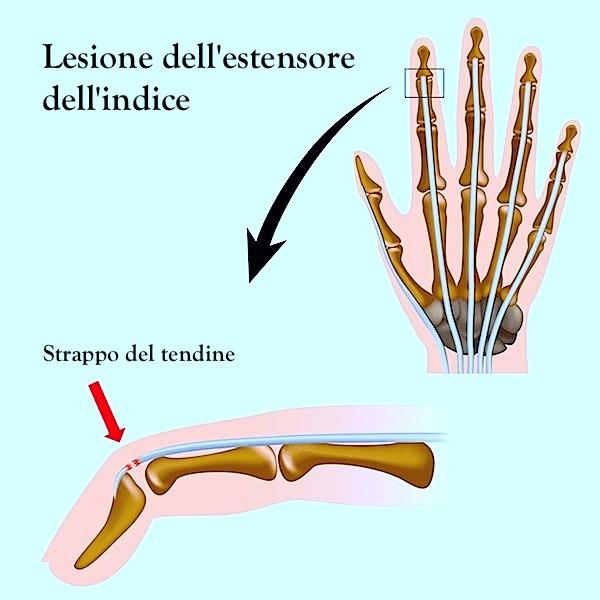 trauma al dito della mano sintomi e terapia