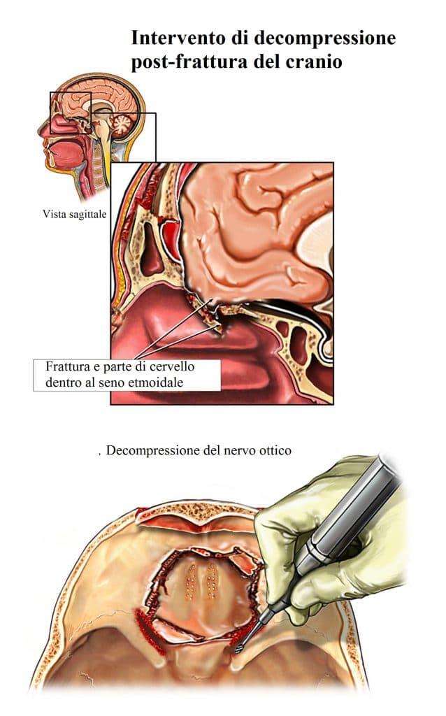 Trauma cranico,intervento di decompressione