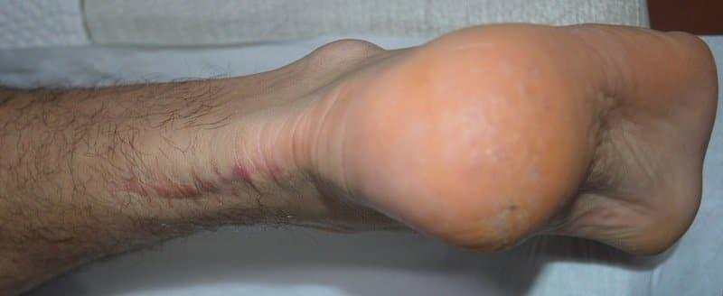 cicatrice,intervento,chirurgico,operazione,tendine,achille