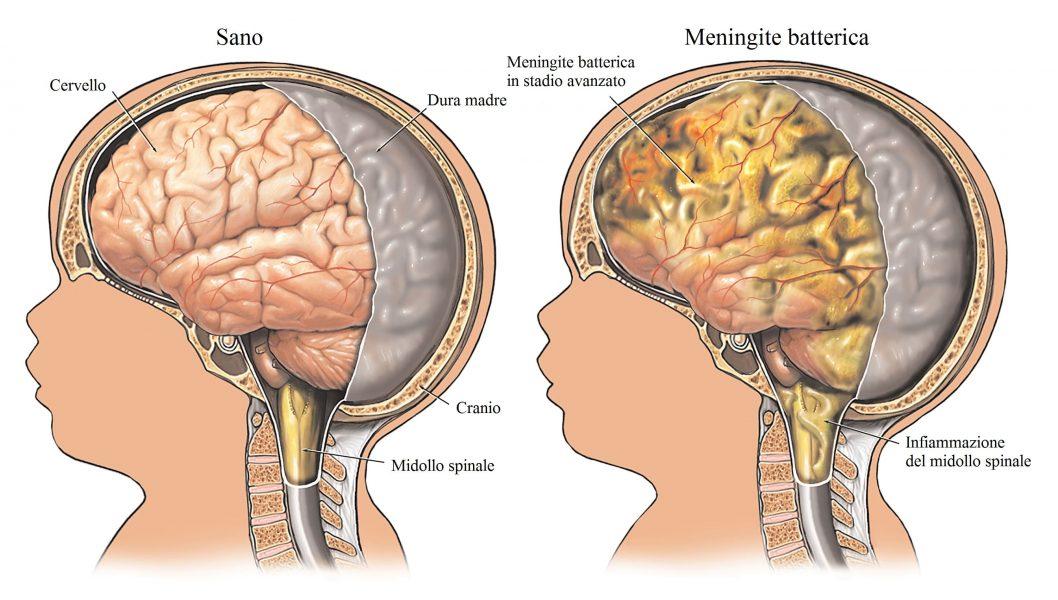Meningite,virale,batterica,dura madre,midollo spinale
