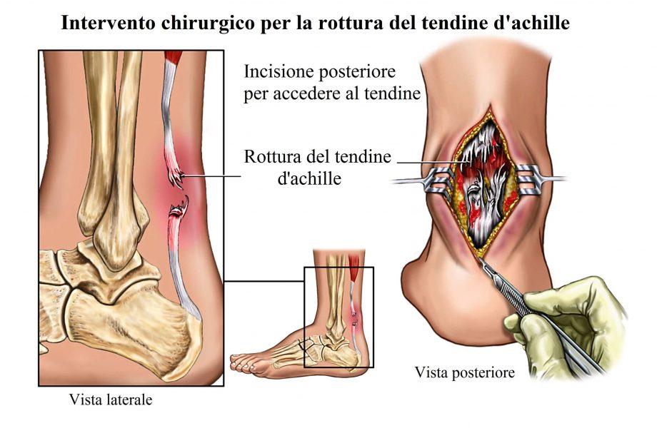 Rottura del tendine d'achille,intervento chirurgico
