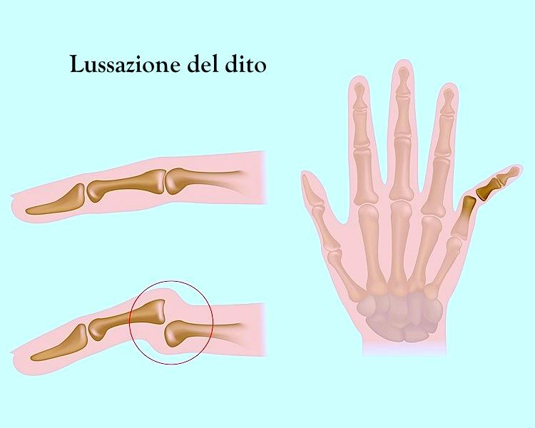 Trauma al dito