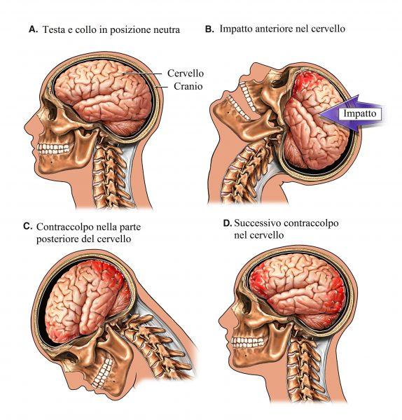 Trauma cranico,emorragia cerebrale,impatto,contraccolpo