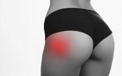 Dolore all'anca di corsa e a riposo: Cause Muscolo-scheletriche