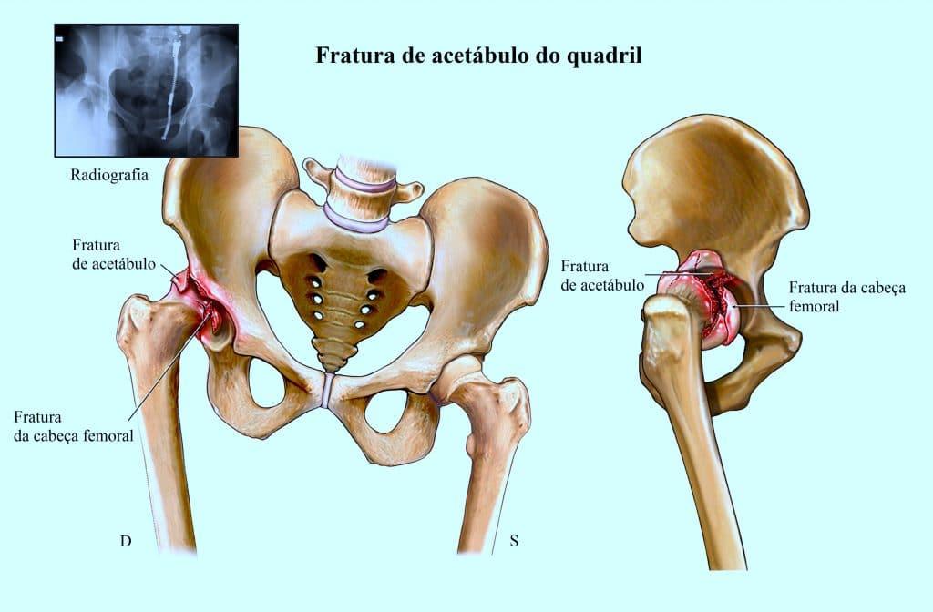 Frattura dell'anca,bacino,acetabolo,testa del femore