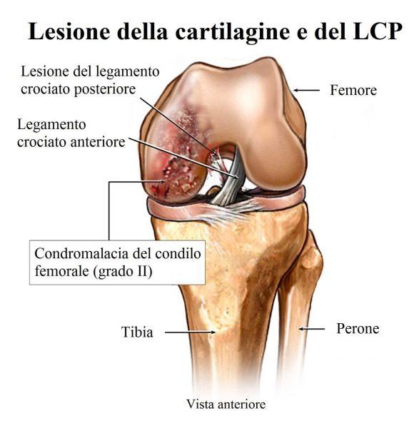 Lesione del legamento crociato posteriore,condromalacia,ginocchio