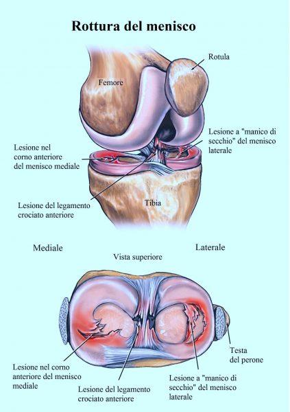 Rottura del menisco,mediale,laterale,interno,esterno