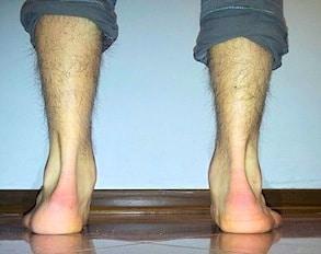 Causa del dolore alla caviglia, supinazione e pronazione