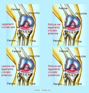 dolore al ginocchio e gonfiore
