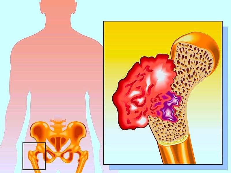 Gamba e dolori del collo