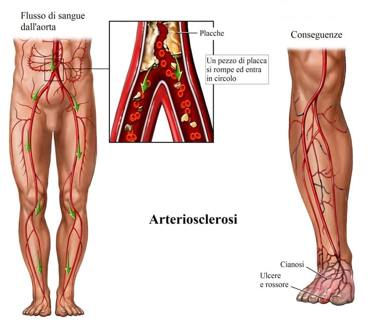 Aterosclerosi,placca nell'arteria,occlusione,cianosi