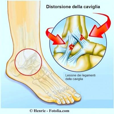 DISTORSIONE alla caviglia,lesione dei legamenti