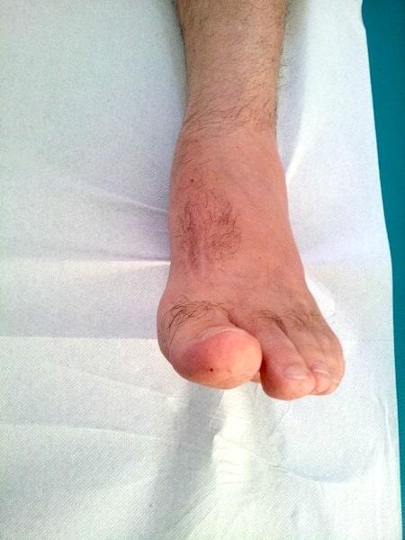 Caviglie gonfie e piedi gonfi