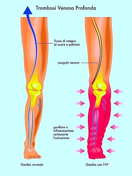 Trombosi venosa profonda, flebite, vene, dolore, rischi