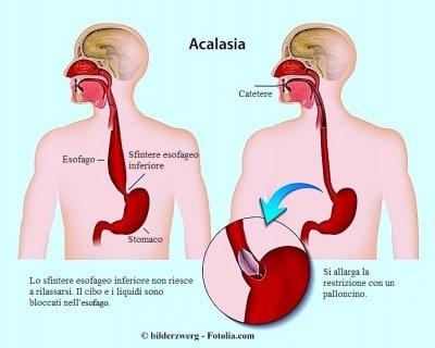 Acalasia esofagea,Dilatazione con il palloncino
